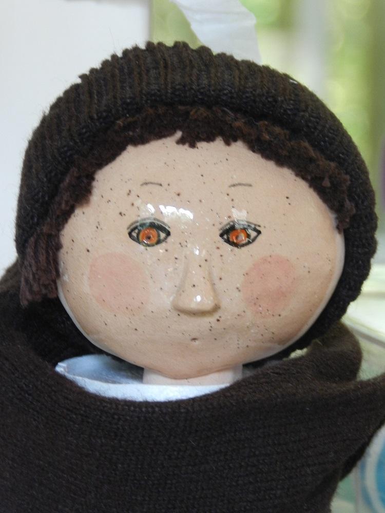 100651-Freckle Face